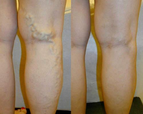 picioarele picioarelor în varicoză